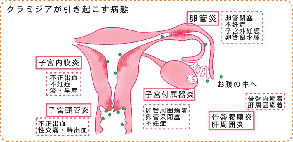 性器クラミジア感染症の基礎知識...