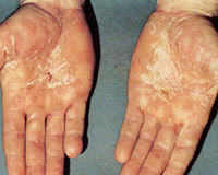 手掌の乾癬様第2期梅毒